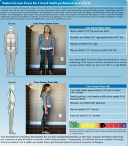 Postural Evaluation showing distortions from spinal stress