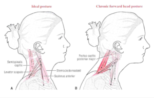 Head forward posture creates tension in the neck, shoulders, and head.