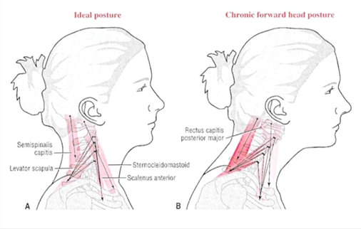 Can Posture Cause Headaches?