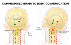 Compromised brain-body communication at the upper cervical spine